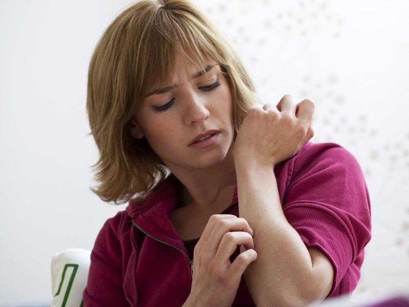 psoriazis inversat sau flexural dermatitis on face