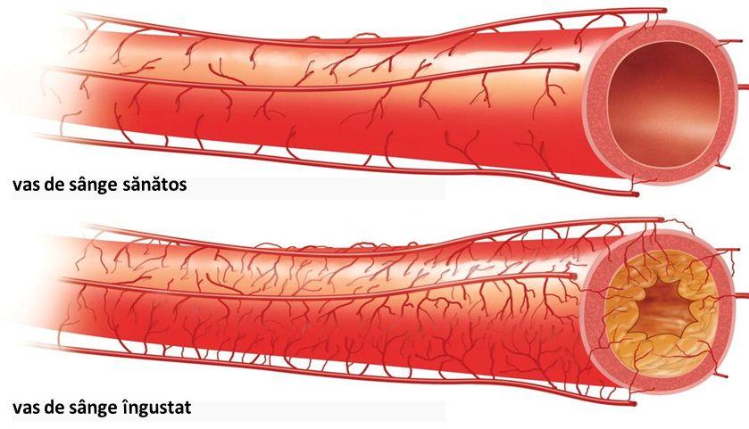 Ce este boala arterială periferică (arterita) - Asist. Univ. Dr. Ruxandra Negoi